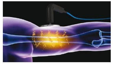 体の内側の細胞から温める深部加温機、インディバ